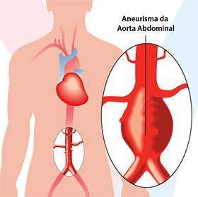 daniel-duarte-cirurgia-vascular-doencas-aneurisma-aorta-abdominal-thumb