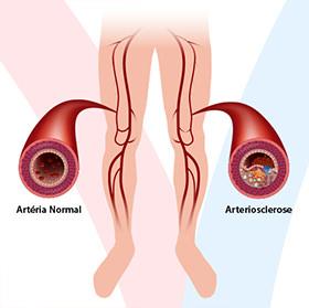 daniel-duarte-cirurgia-vascular-doencas-arteriosclerose-thumb