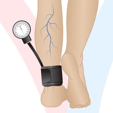 Índice tornozelo-braquial (ITB)