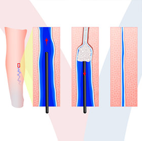 daniel-duarte-cirurgia-vascular-procedimentos-escleroterapia-thumb