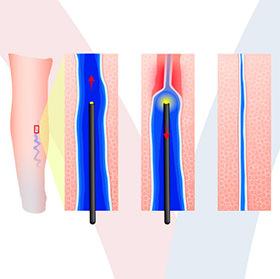 daniel-duarte-cirurgia-vascular-procedimentos-laser-endovenoso-thumb