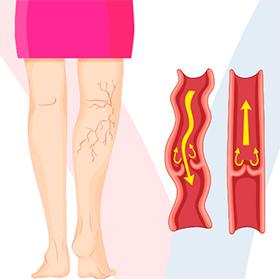 daniel-duarte-cirurgia-vascular-estetica-vascular-varizes-thumb